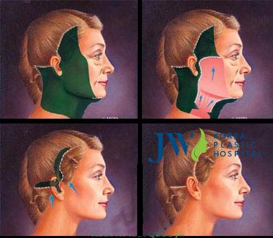 Trẻ hóa toàn diện khuôn mặt cho người có tuổi