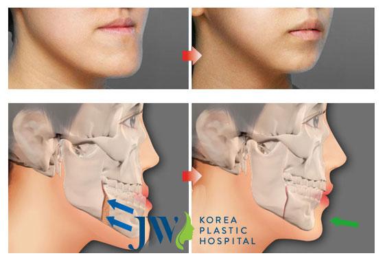 Phẫu thuật cắt xương hàm móm
