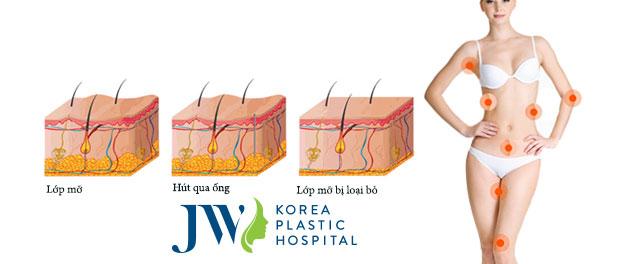 Phẫu thuật hút mỡ toàn thân