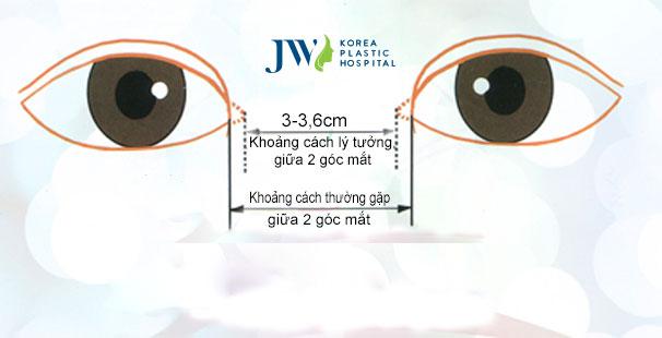 Thẩm mỹ mắt to như thế nào - Khoảng cách góc mắt