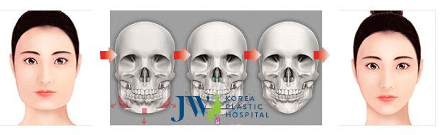 Phẫu thuật khuôn mặt V Line có để lại sẹo không