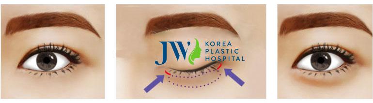 Phẫu thuật lấy mỡ da thừa mí mắt