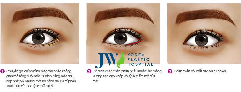 Phẫu thuật mắt to và những điều chưa biết
