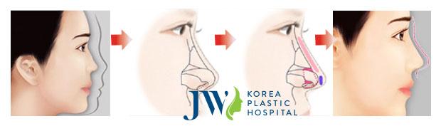 Mô phỏng tiến trình nâng mũi bọc sụn tại Bệnh viện thẩm mỹ JW Hàn Quốc