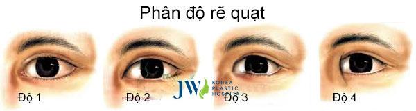 Thẩm mỹ mắt to