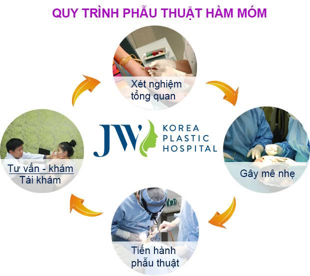 Chi phí phẫu thuật hàm móm