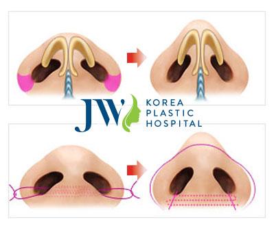 Mô phỏng tiến trình thu gọn cánh mũi