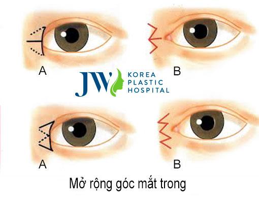 Phẫu thuật thẩm mỹ mắt to