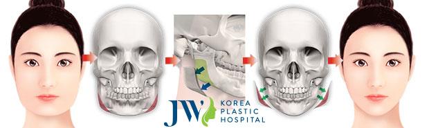 Phẫu thuật cắt xương hàm vline có nguy hiểm không?