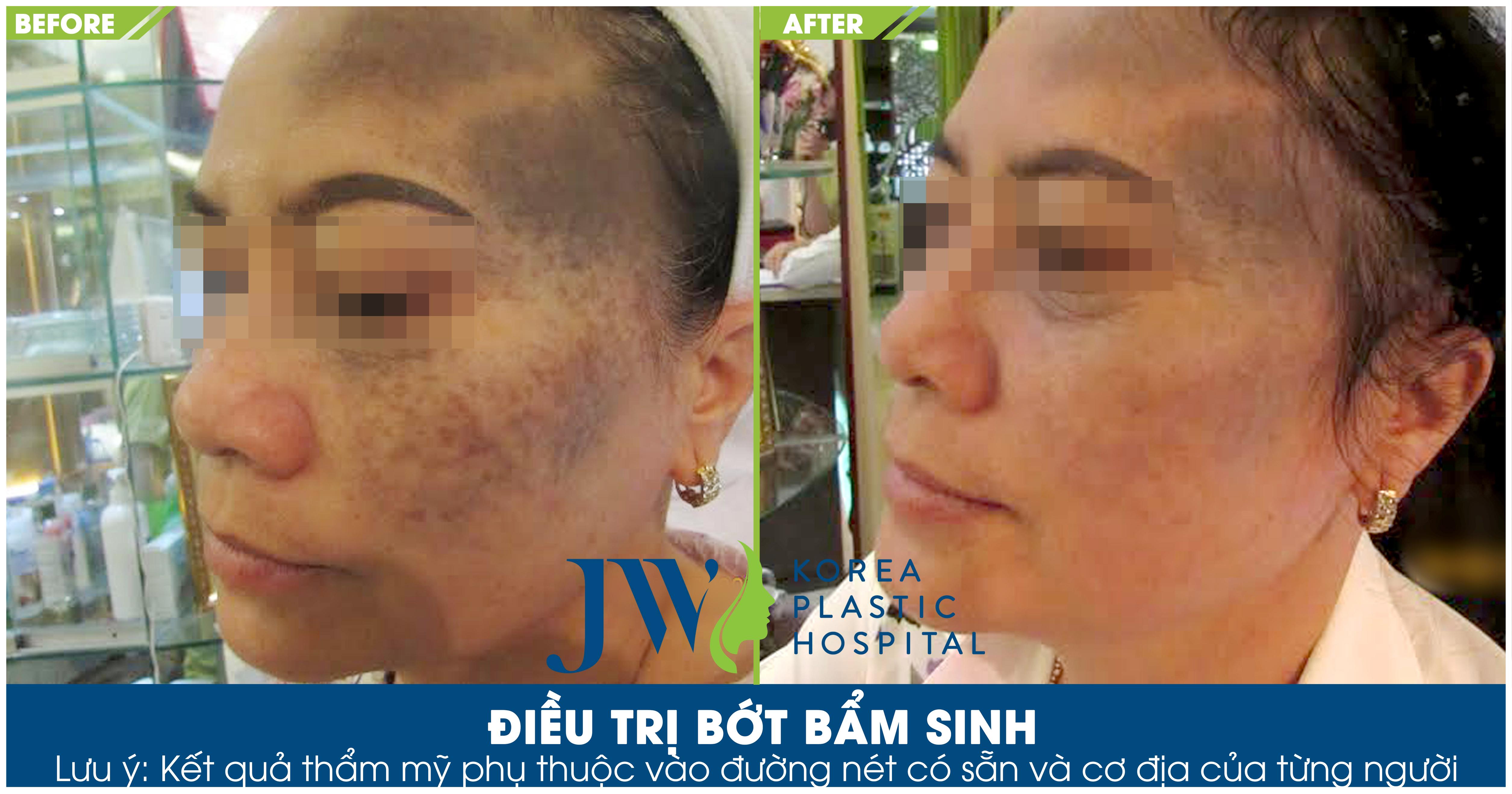 Làn da khách hàng trông sáng rõ hơn sau khi điều trị bớt tại Skincare JW