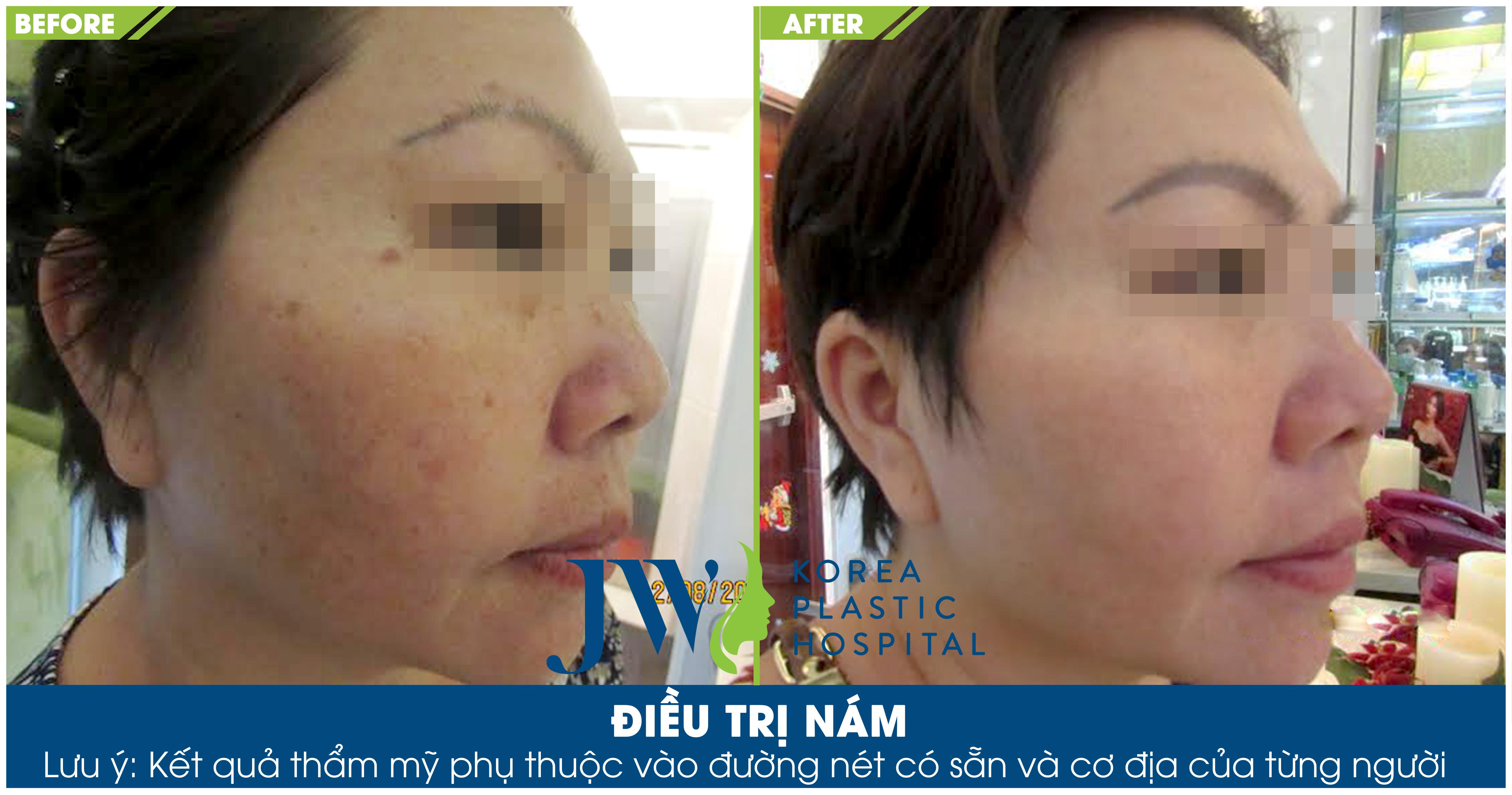 Hình ảnh khách hàng đã trị nám sâu thành công tại Skincare JW