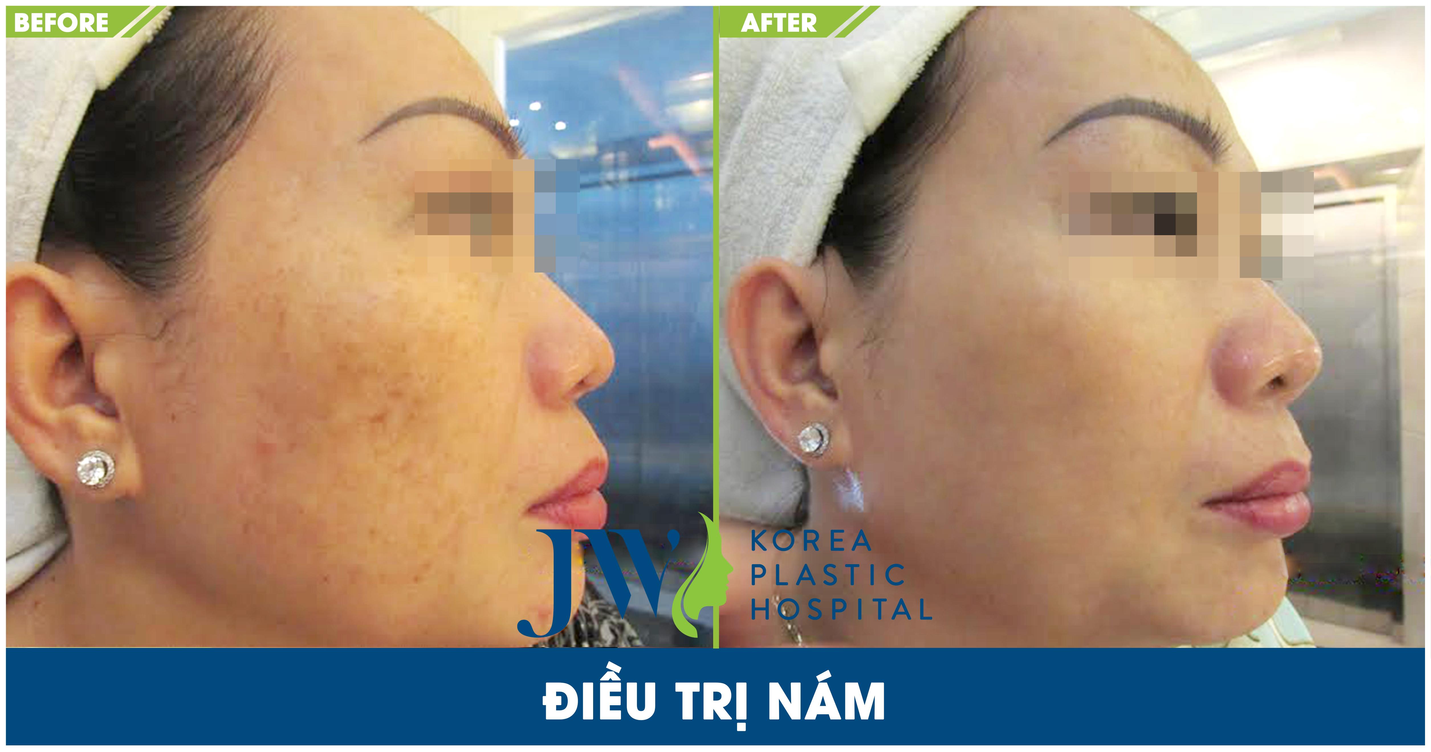 Một số hình ảnh sau khi trị nám tại Skincare JW