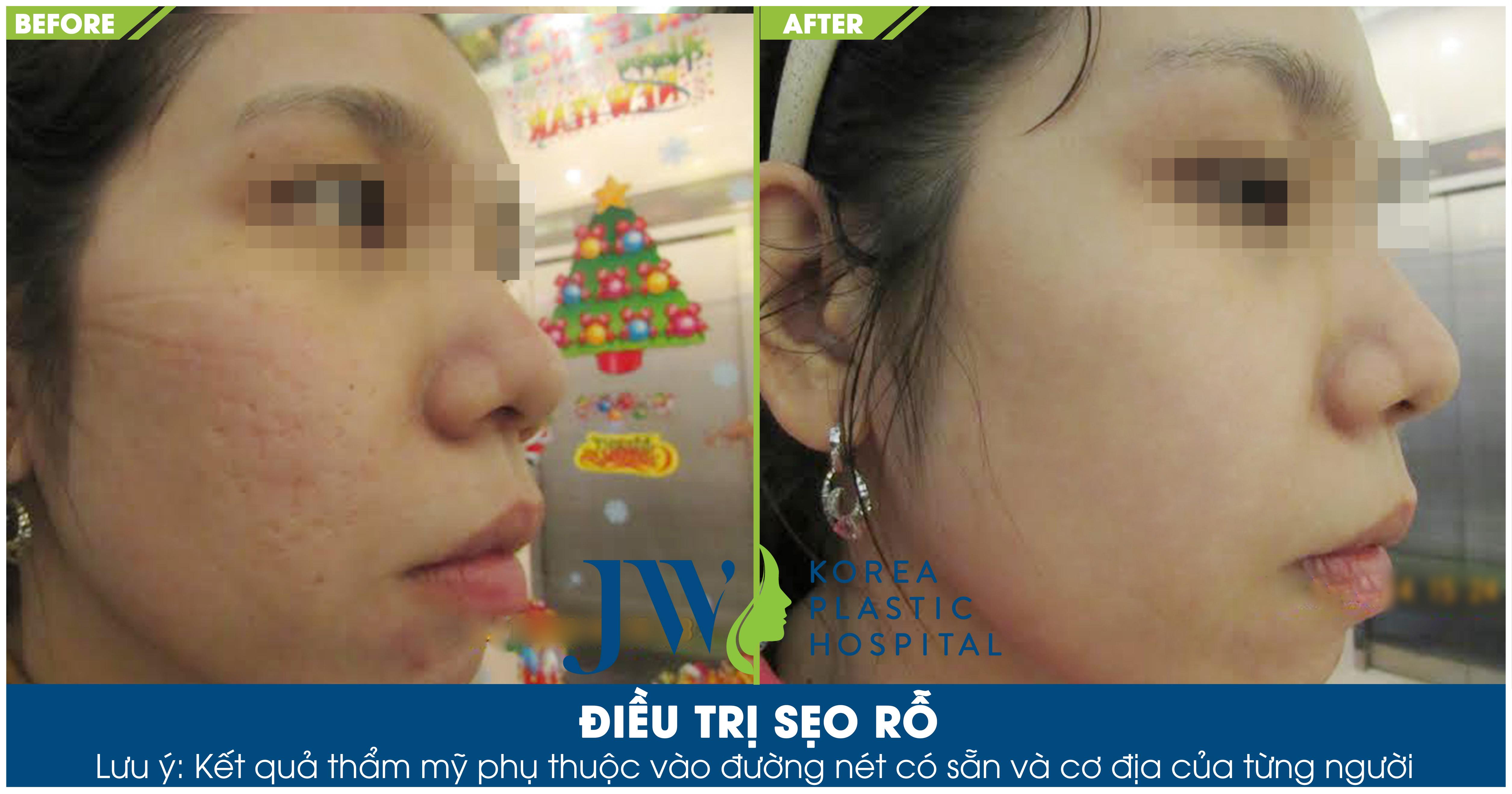 Hình ảnh sau khi điều trị sẹo rỗ thành công tại Skincare JW
