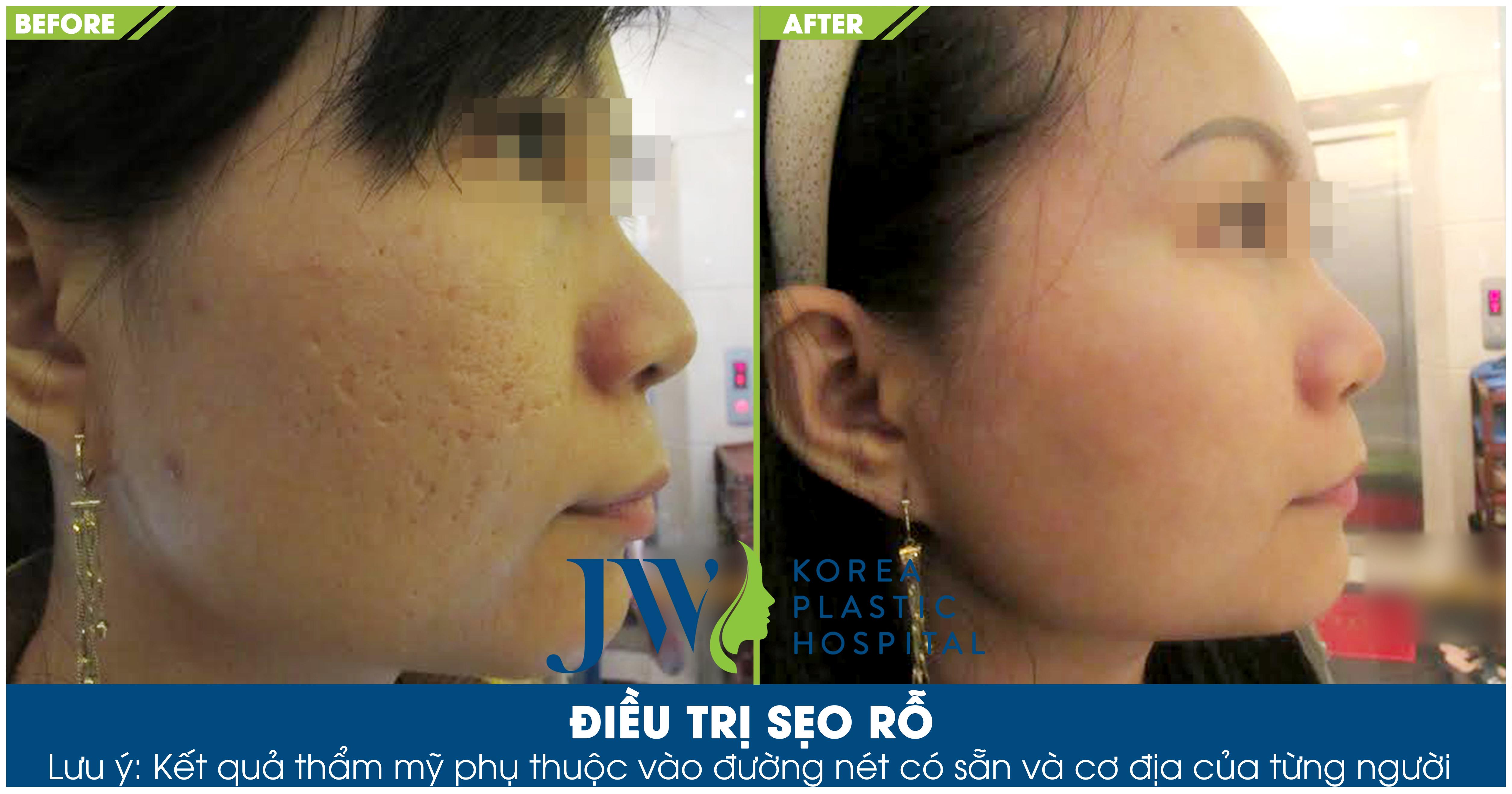 Hình ảnh khách hàng trước và sau khi trị sẹo rỗ
