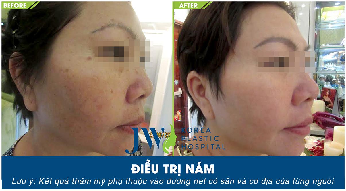 Kết quả sau khi trị nám thành công tại Skincare JW