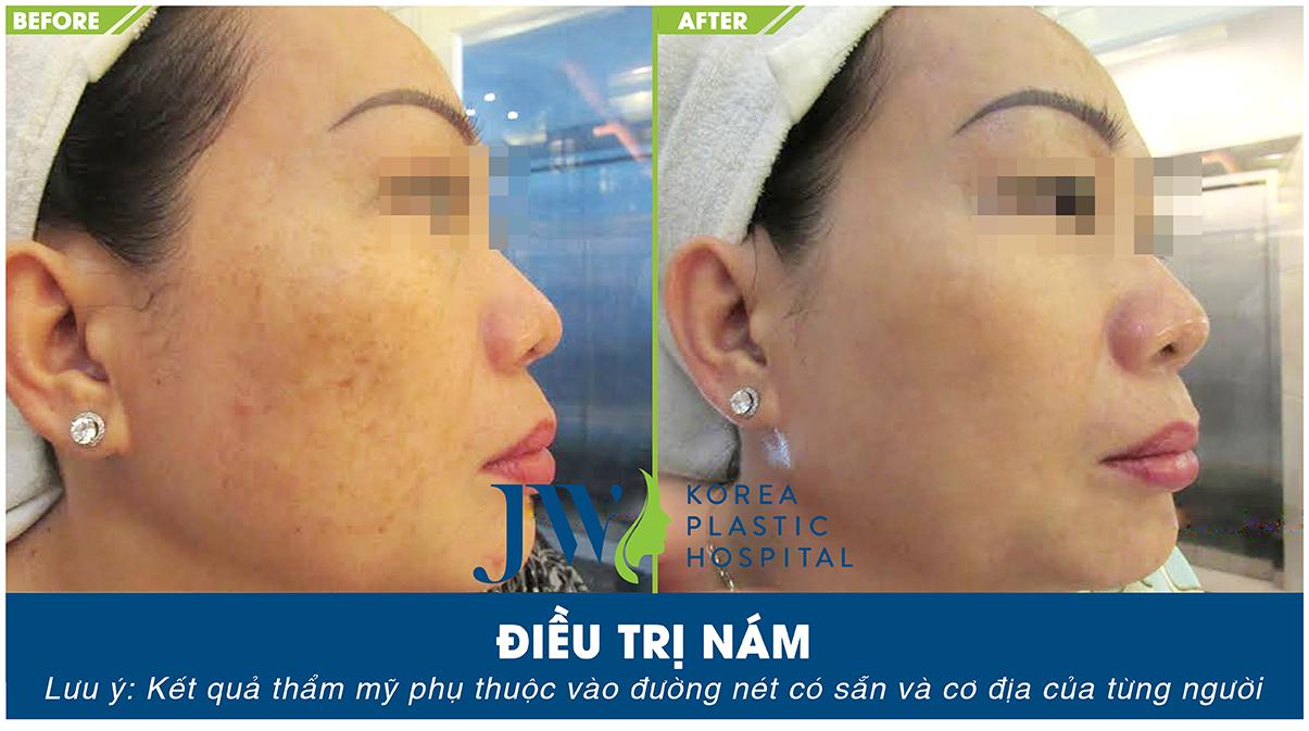 Hình ảnh sau khi trị nám thành công tại Skincare JW