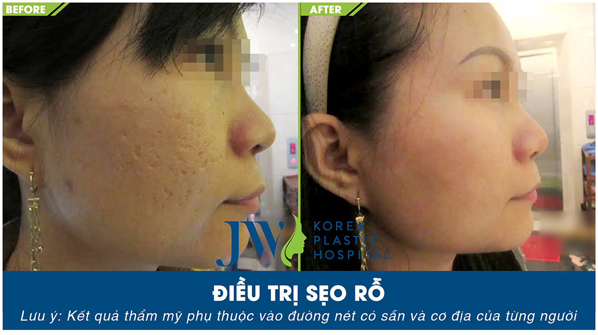 Sau vài tháng, khách hàng này đã có được làn da mịn màng hơn sau khi trị sẹo mụn tại Skincare JW