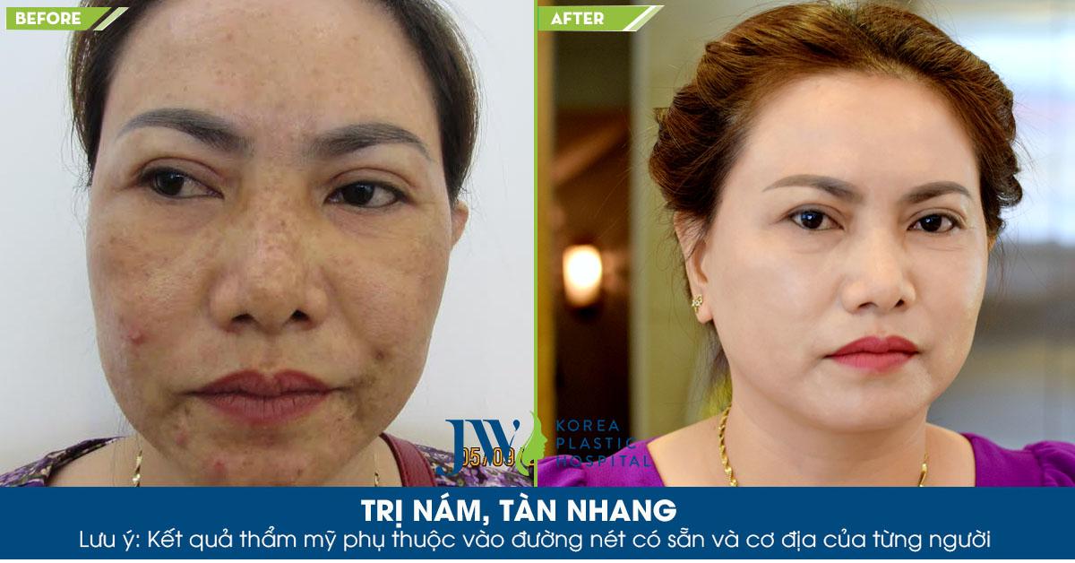 Khách hàng được áp dụng công nghệ Young Skin Laser 6.1 đã loại bỏ mụn, nám, tàn nhang và thâm lâu năm, lấy lại làn da mịn màng, hồng hào